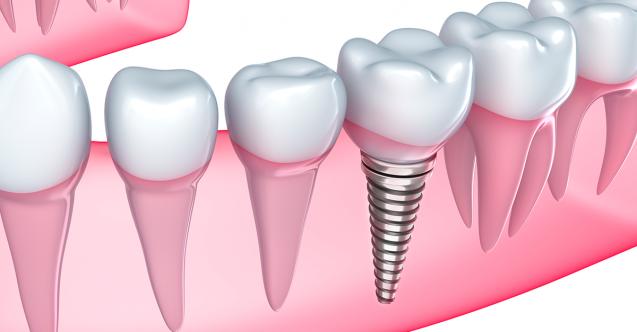 Implant-Dentar-637x332