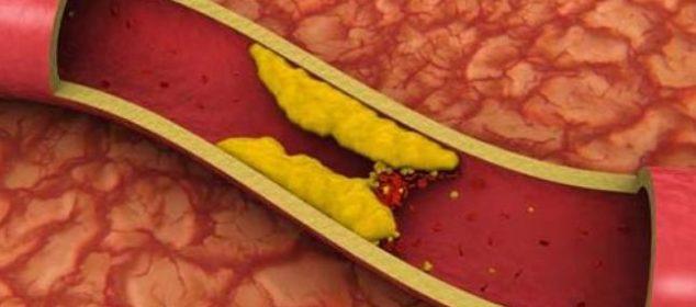 trigliceridele